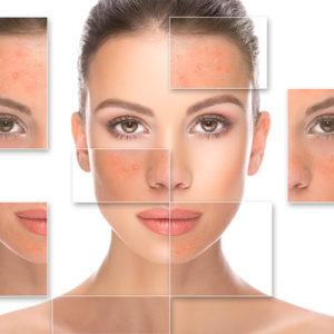 Problème de peau, régénération de la peau avec le peeling