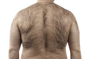 Homme de dos très poilu avant épilation au laser