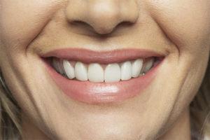Bouche souriante avec dents blanches